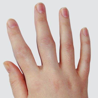 Fingerschmerzen - Schmerzen in den Fingern: Ursachen und