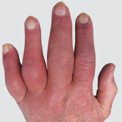 Die Mykose der Nägel die Symptome die Behandlung